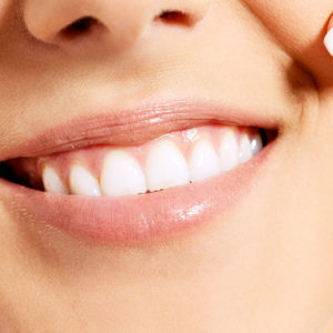 Traffic rate and the success of an Invisalign event