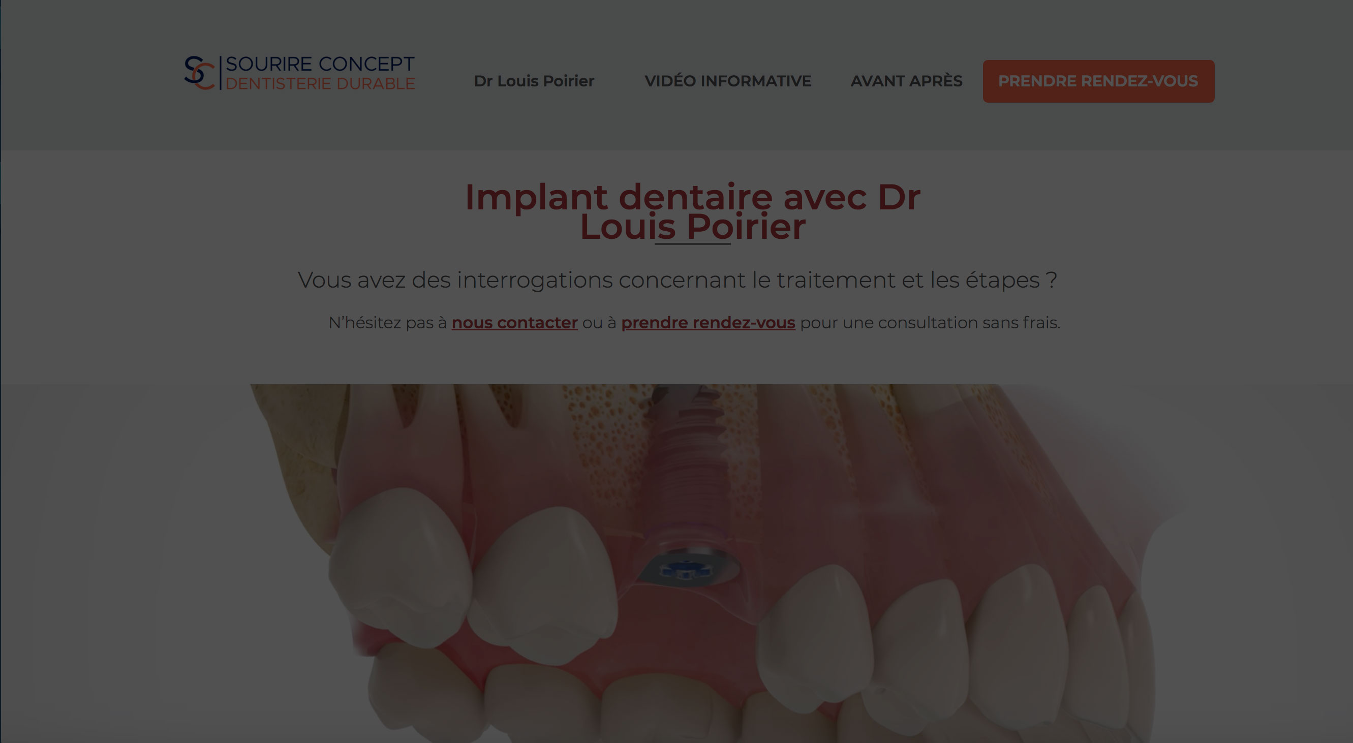 Dr Louis Poirier - Implantologie